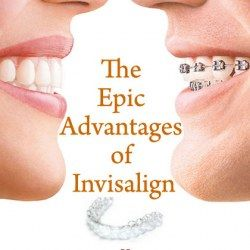 The Epic Advantages Of Invisalign