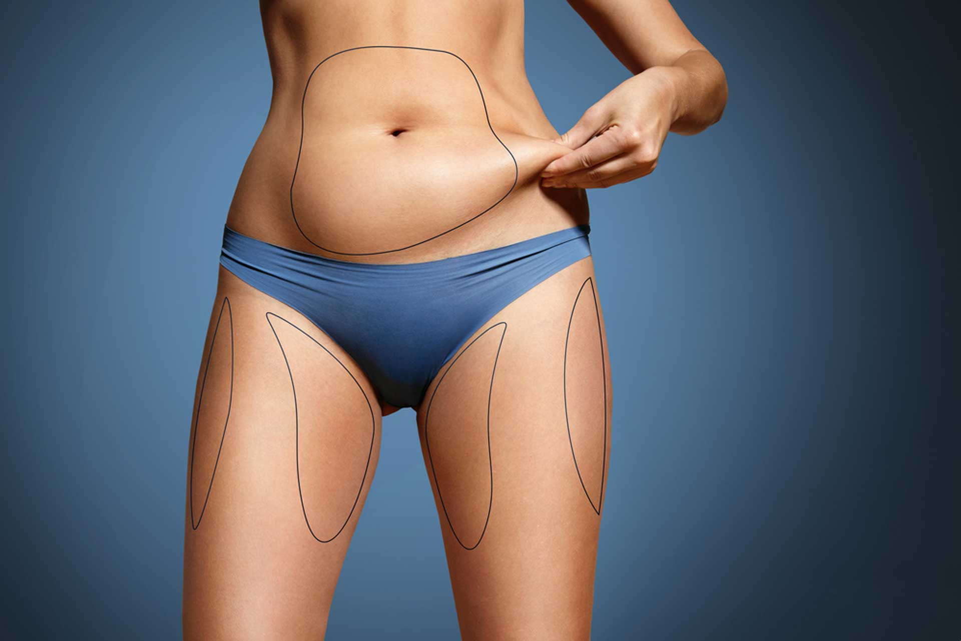 Liposuction vs. Non-Surgical Fat Reduction: Pros & Cons | Aha!NOW
